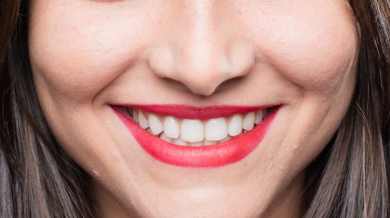 Lentes dentales